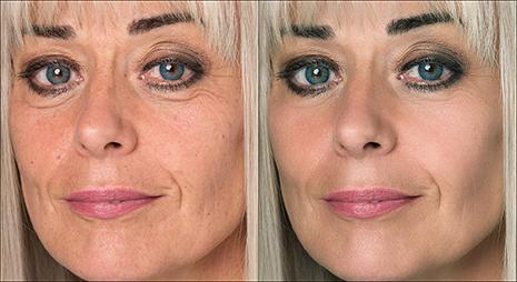 skin-retouching-sample-image